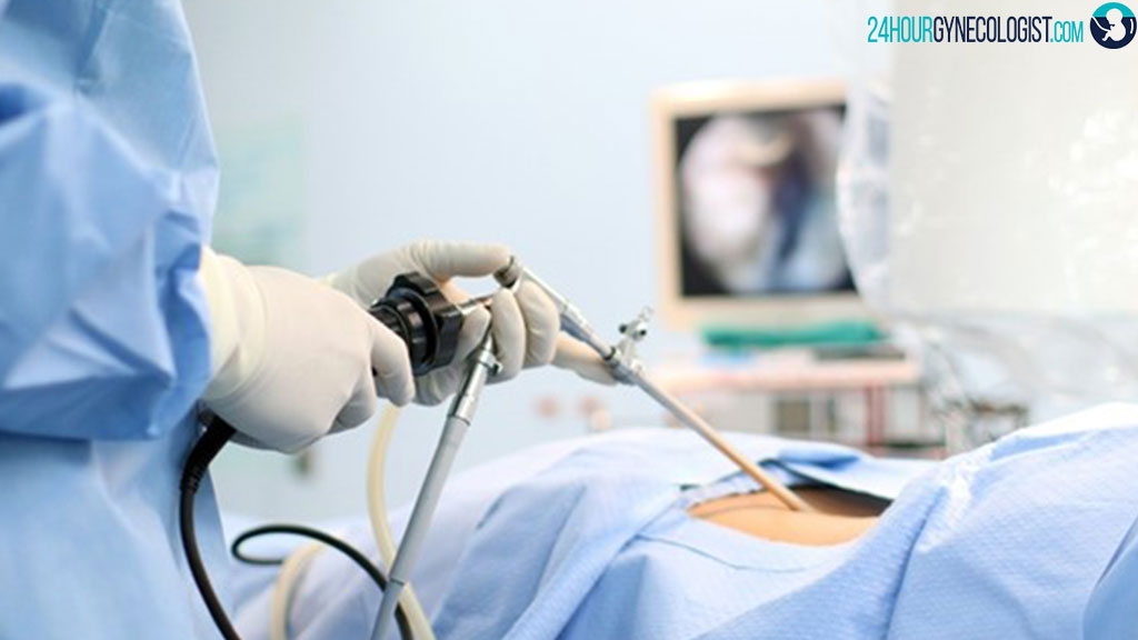جراح لاپاراسکوپی رحم شیراز